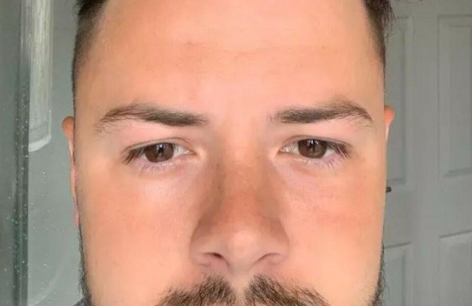 """Ce s-a întâmplat cu părul acestui bărbat, la un an după ce și-a făcut implant """"la reducere"""" la o clinică din Turcia"""