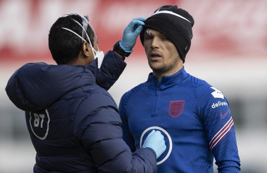 Și-au bătut prea mult capul! Doi jucători englezi au avut nevoie de îngrijiri după o ciocnire în timpul antrenamentului
