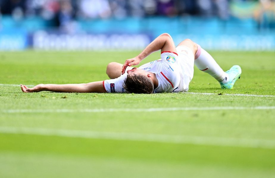 EURO 2020   Imagini eroice în Croaţia – Cehia. Cu faţa plină de sânge, Patrik Shick a dat gol din penalty. Lovren i-a spart nasul