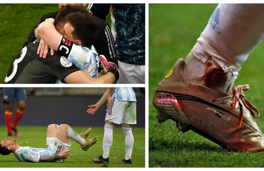 Dramatism total în Argentina – Columbia! Lionel Messi a jucat cu glezna plină de sânge. Portarul Emiliano Martinez a apărat 3 penalty-uri